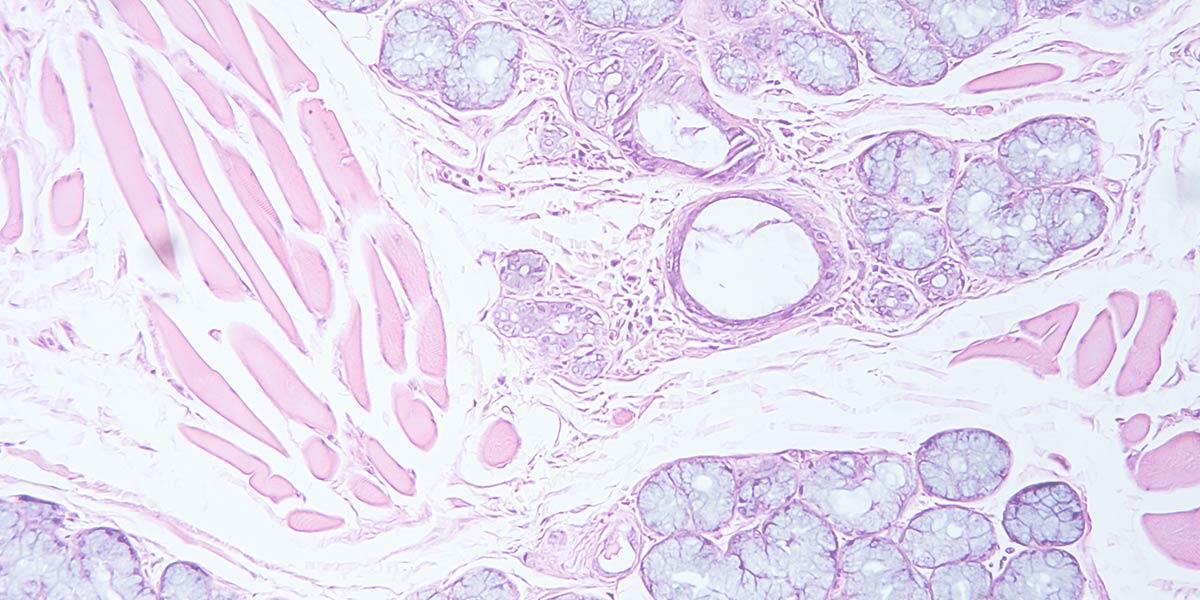 Rigenerazione tessutale